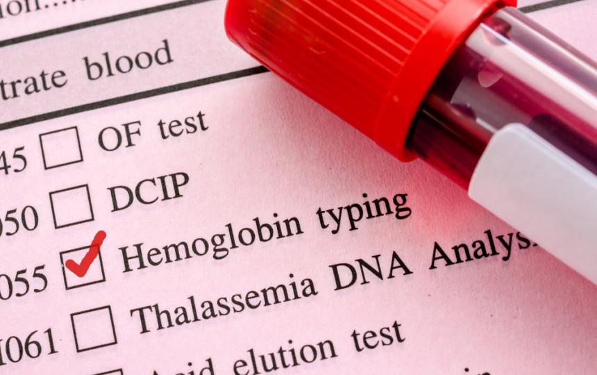 hipertenzija ir žemas hemoglobino kiekis)